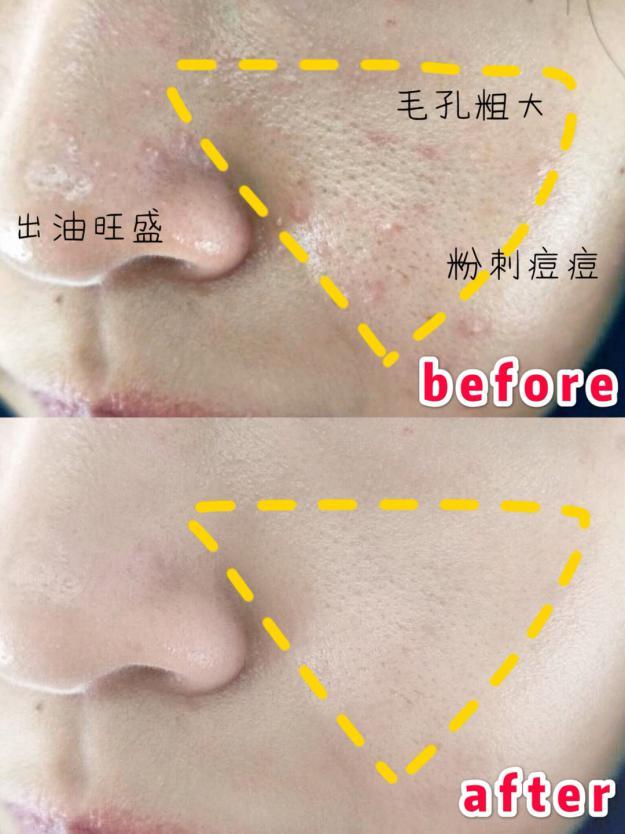 你真的选对了RC护肤深层肌肤清洁面膜吗剩下都?