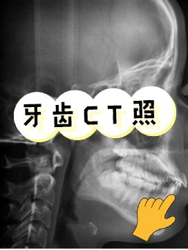 大龄正畸之旅:我的隐贝舌侧矫牙经验