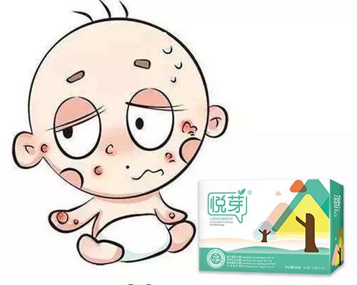 悦芽AA:宝宝湿疹不可怕,重要的是找到科学方法