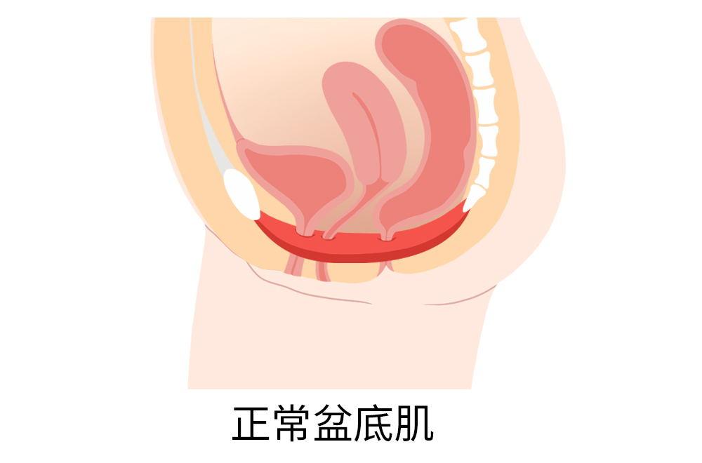 正常盆底肌.jpg